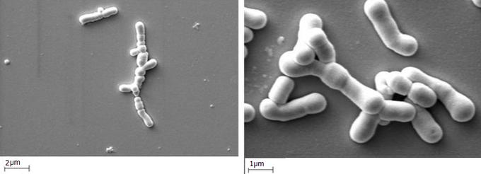 Бифидобактерии в жидких пробиотиках